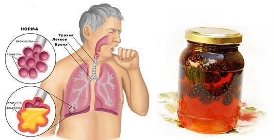 Як очистити легені в домашніх умовах народними засобами