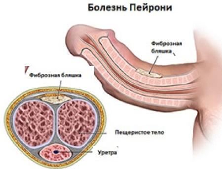 Пейроні хвороба у чоловіків: причини і лікування в домашніх умовах без операції